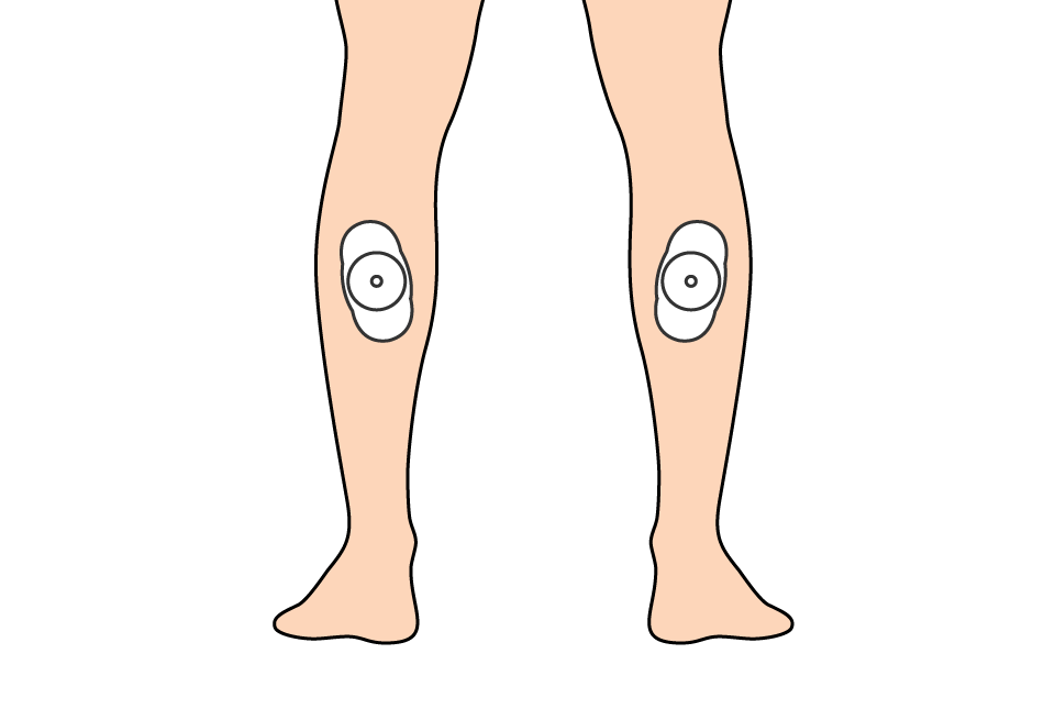 EMS P1 (Exercise Prep) and P4 (Active Recovery) – pads on my calves